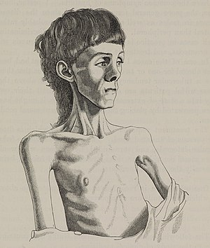 Miss K. R- aged 14, before treatment for anorexia Wellcome L0073694 (cropped).jpg